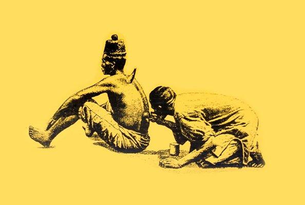 Хиджама (кровопускание): что это такое, польза и вред процедуры, атлас точек для постановки по Сунне